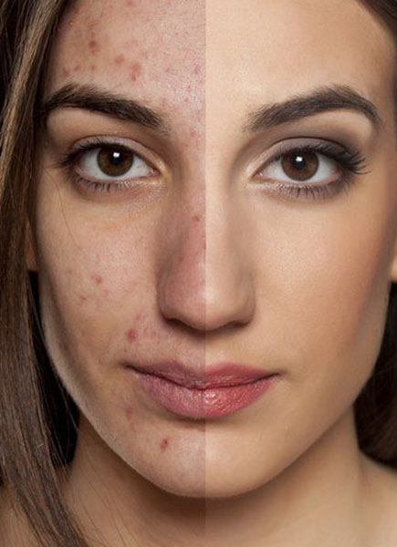 Amazing Skin