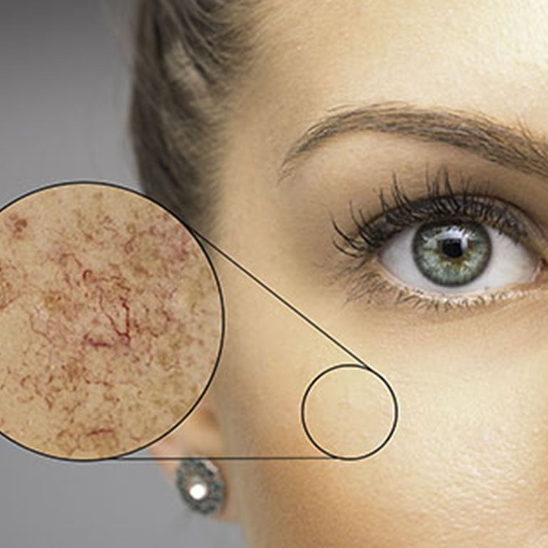 _0001_Laser & Energy Treatments for Capillaries