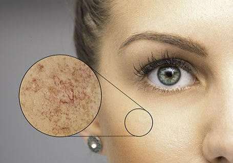 Laser & Energy Treatments for Capillaries