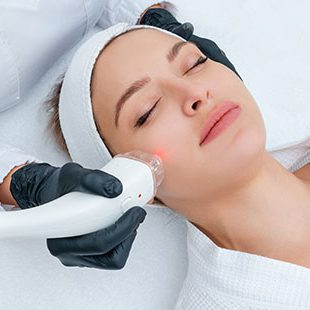 Laser Treatments for Acne
